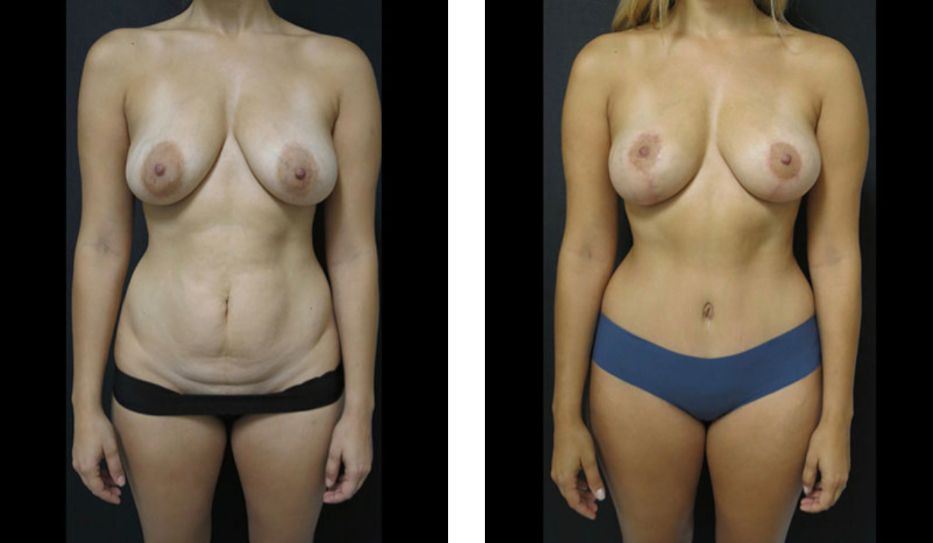 Before and After for a Tummy Tuck